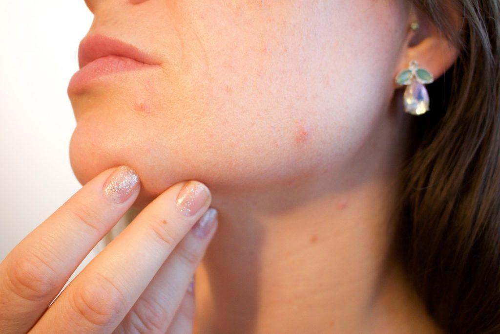 niacinamida para el acné