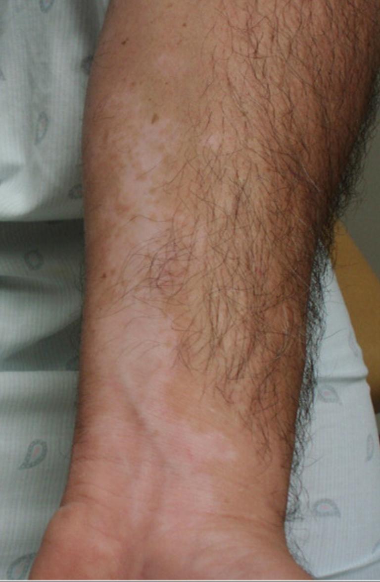 Vitiligo con manchas blancas en la piel