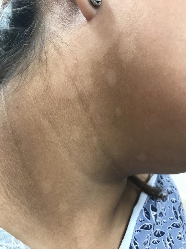 ¿Por qué aparecen manchas blancas en la piel y como prevenirlas?
