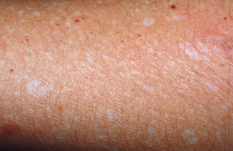 manchas blancas en la piel por el sol