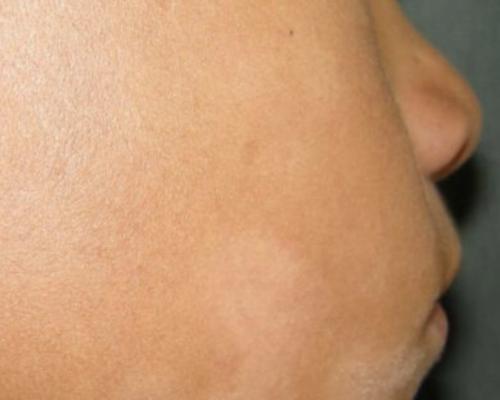 Manchas blancas en la cara por dermatitis atópica